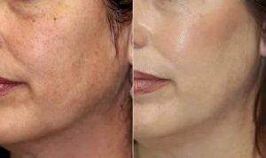 Efekti dobre ćelijske obnove kože