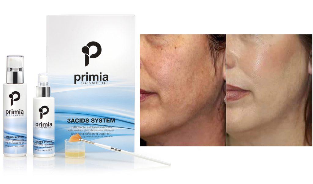 Efekti napredne ćelijske obnove kože 3 acid sistemom